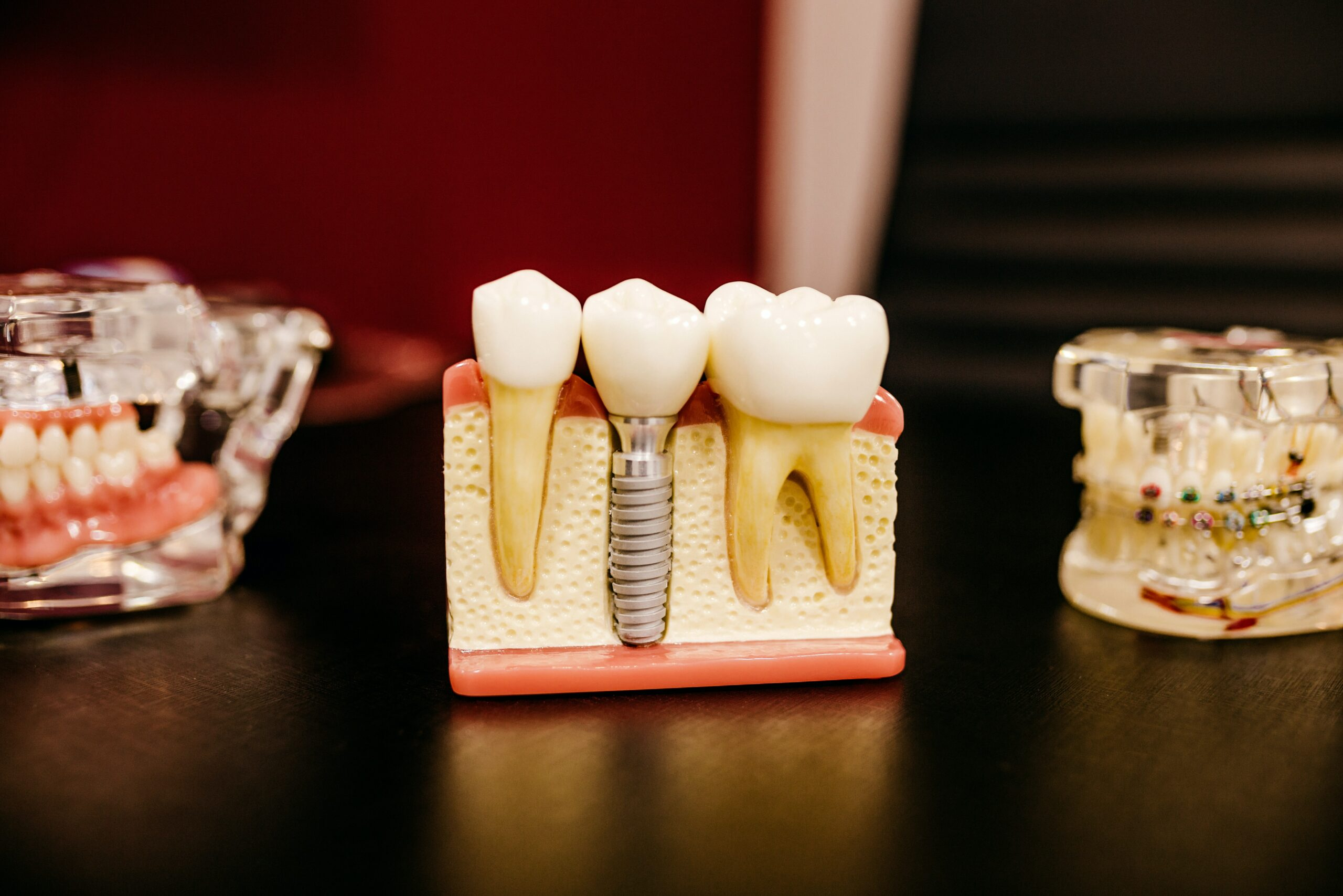 Dental Implants are a way to replace a missing tooth