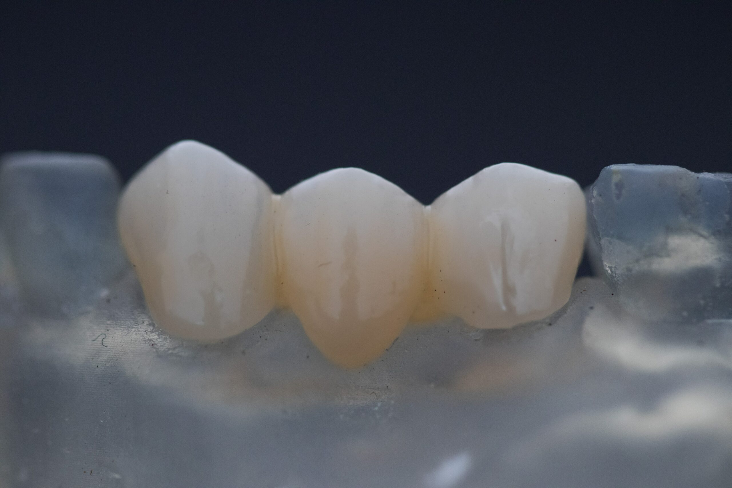 A bridge can replace a missing tooth
